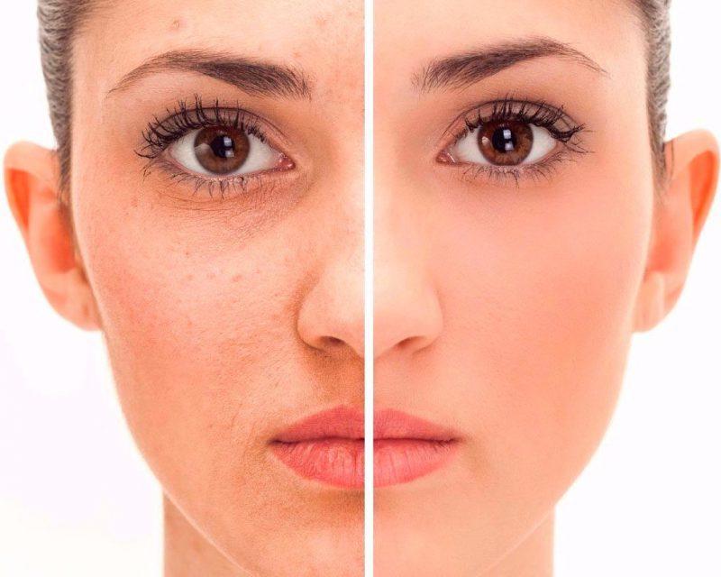 ultrasonido facial